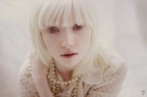 A Albina Mais Linda Do Mundo